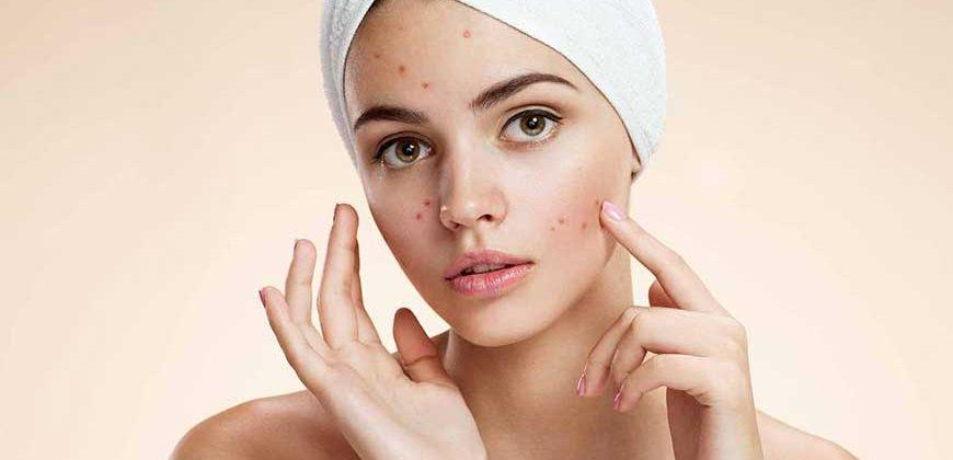 acne klinik